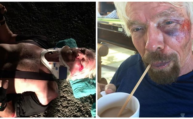 Richard Branson sufre un aparatoso accidente de bicicleta