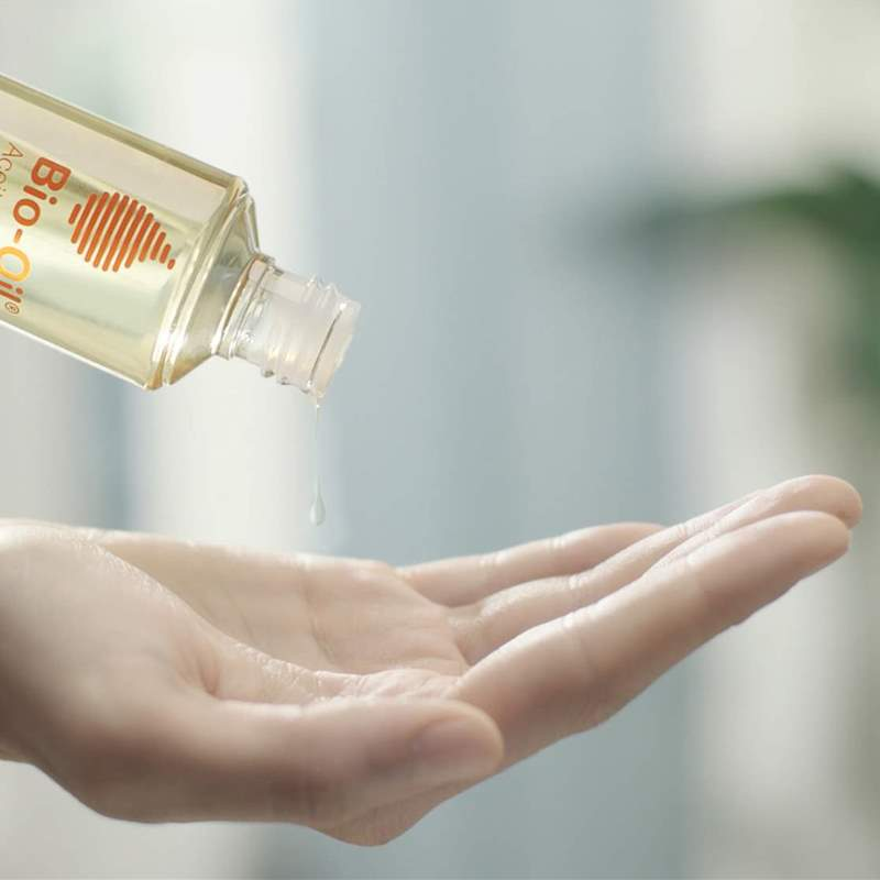 Este es el aceite natural que ayuda a los problemas de estrías, cicatrices y manchas de la piel